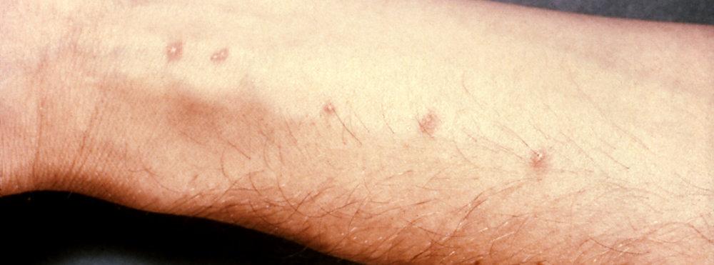 schistosomiasis vakcina Oksolin kenőcs a papillómák ellen