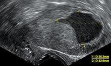 endometrium rák mirena