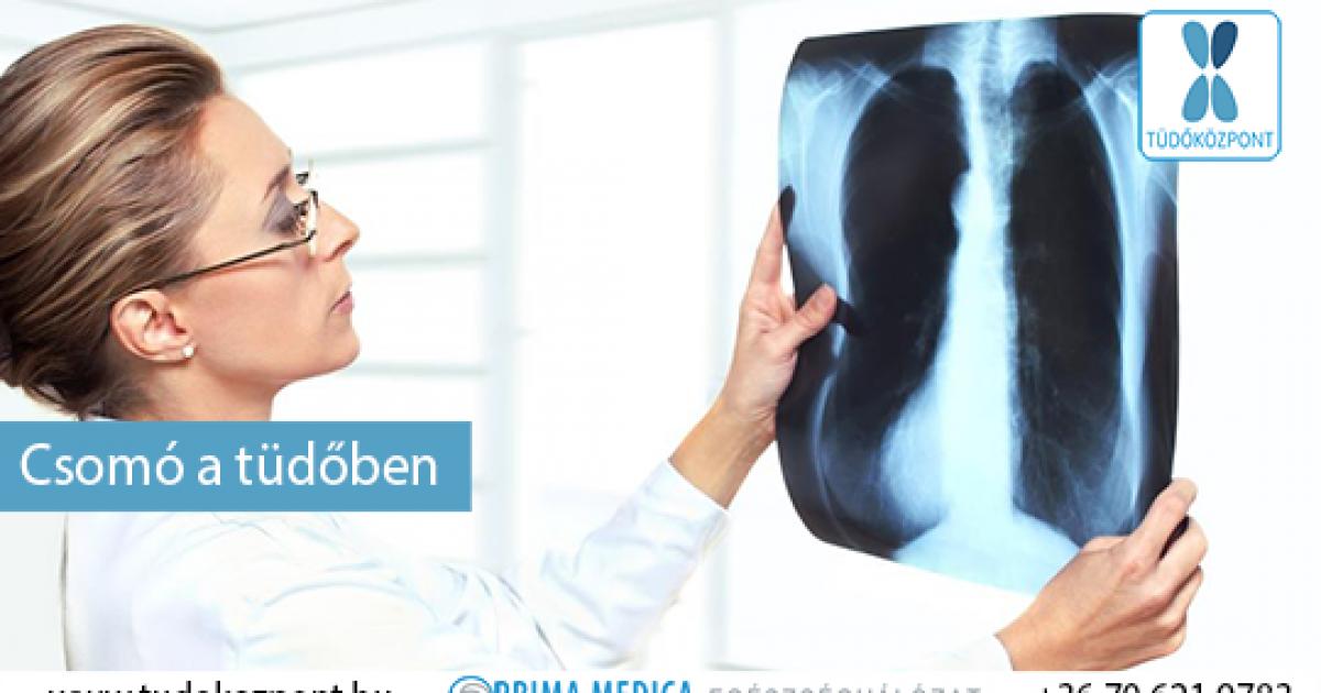 A tüdővizenyő tünetei