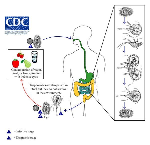 Giardiasis fertőző betegségek