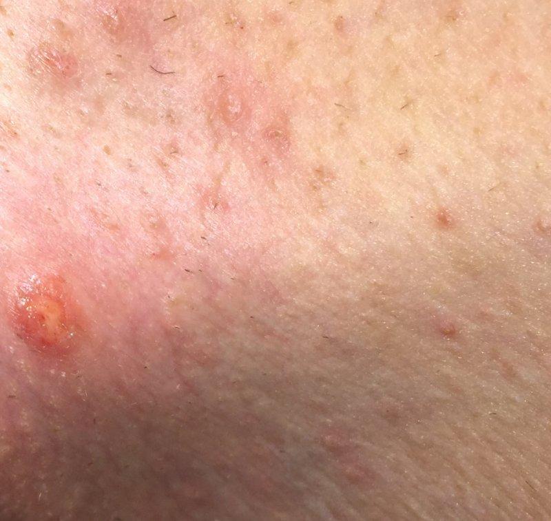 hpv vírus a tehotenstvi eltávolítják a szemölcsök méhnyakából