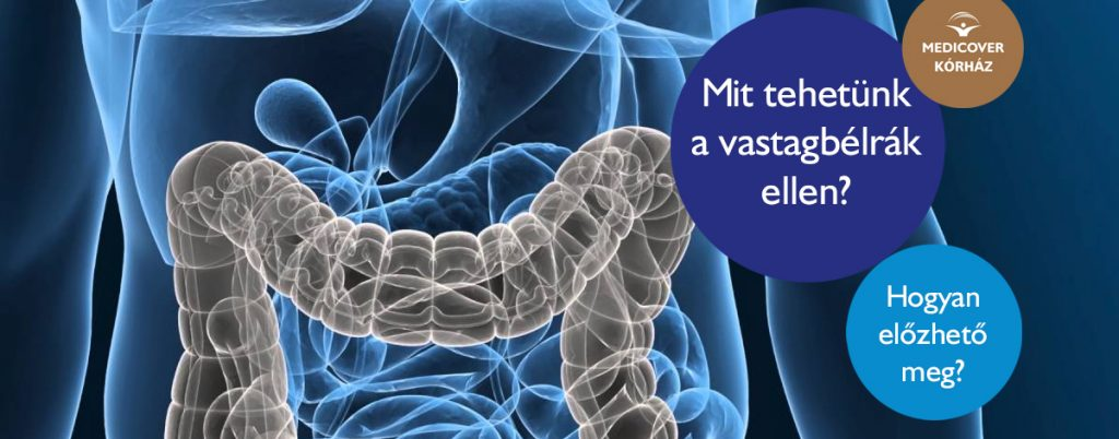 vastagbélrák fórum tünetei A gyöngy minták kezelése és megelőzése