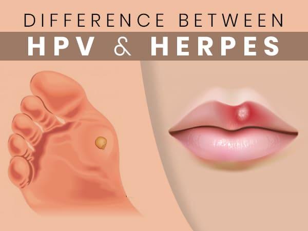 Herpes genitalis (nemi herpesz)