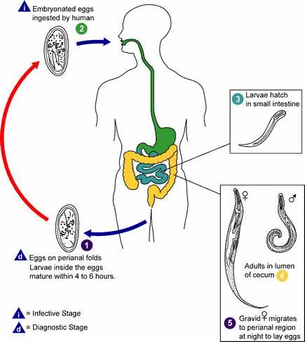Enterobiosis beleegyezési minta. Tényeken Alapuló Orvostudomány Módszertani Ajánlások