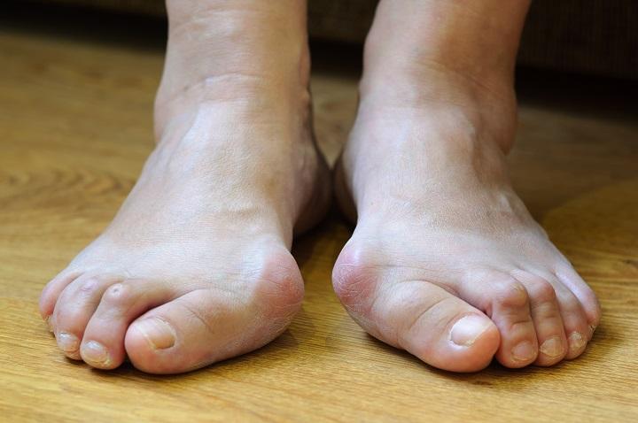 Felnőttkori lábfej-deformitások, annak okai, kezelésük