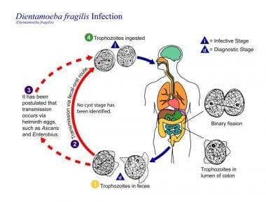 táplálkozás giardiasis esetén