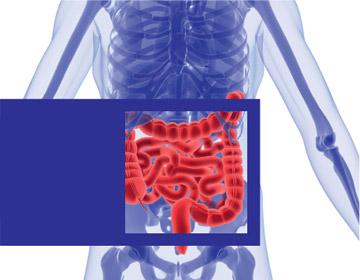 diagnosztikus vastagbélrák