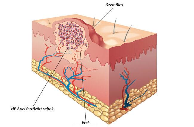 emberi papillomavírus fertőzés a karon