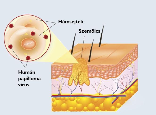 gége papilloma orvosi kifejezés féreg nekrózis