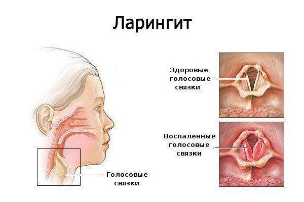 női papillomavírus okai
