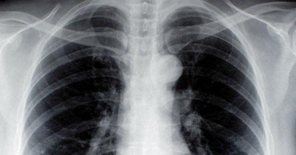 papillómák és tüdőrák