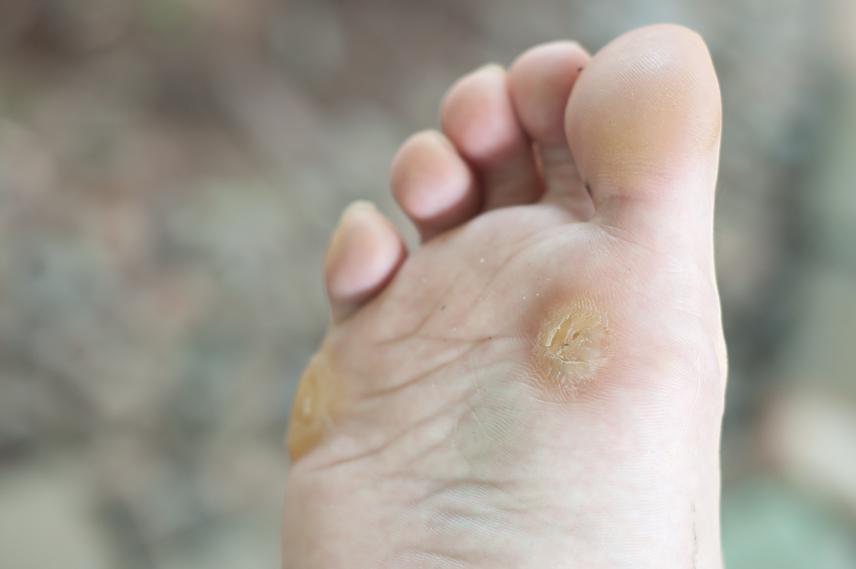 szemölcs kezelés a láb alján